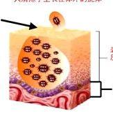 尖圭湿疣生殖器疣或性病疣