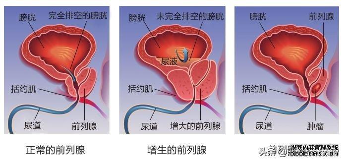 前列腺大就是前列腺增生吗?7个常见误区一次澄清